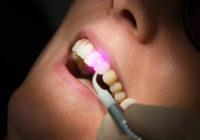 Лазерная стоматология