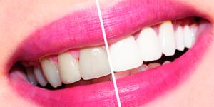 лазерное отбеливание зубов в Самаре цены